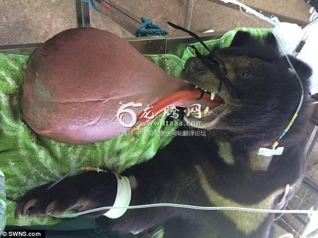 Nyan Htoo had to undergo a four-hour operation to take away nearly half a stone of tongue tissue after he contracted a mystery illness that made his tongue swell massively